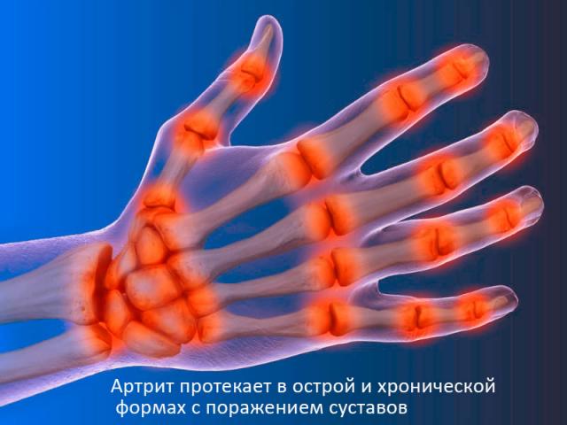 Самые распространенные виды артрита - подагрический, ревматоидный, псориатический